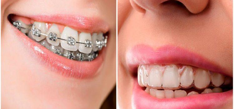 Montpellier : des prothésistes dentaires réalisent pour vous tous types de travaux