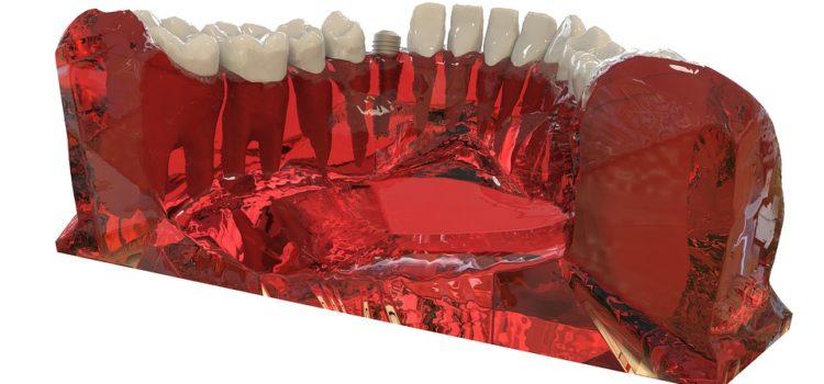 Quel est le prix des implants dentaires en Europe ?